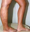 Klippel_Trenaunay_Syndrome_1