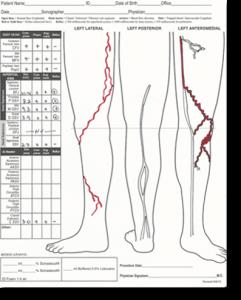 VCA leg map