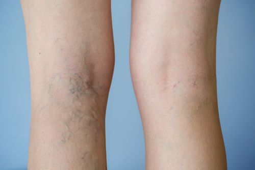 Photo of legs with and without varicose veins