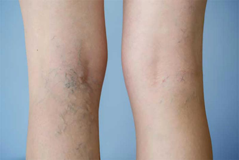Varicose Veins Facts That You Need to Know