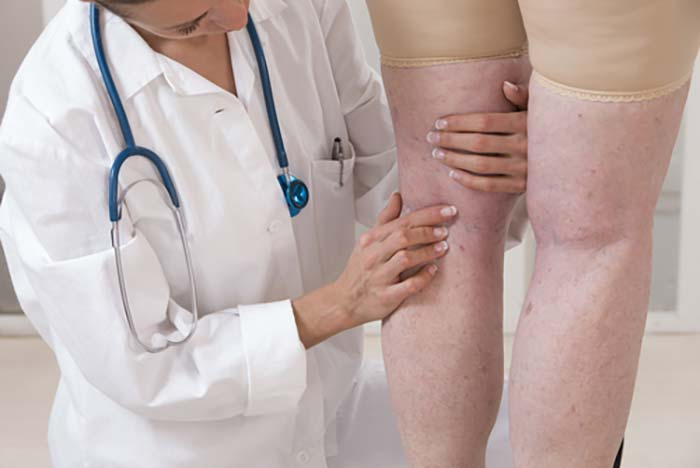 Doctor checking legs for spider veins