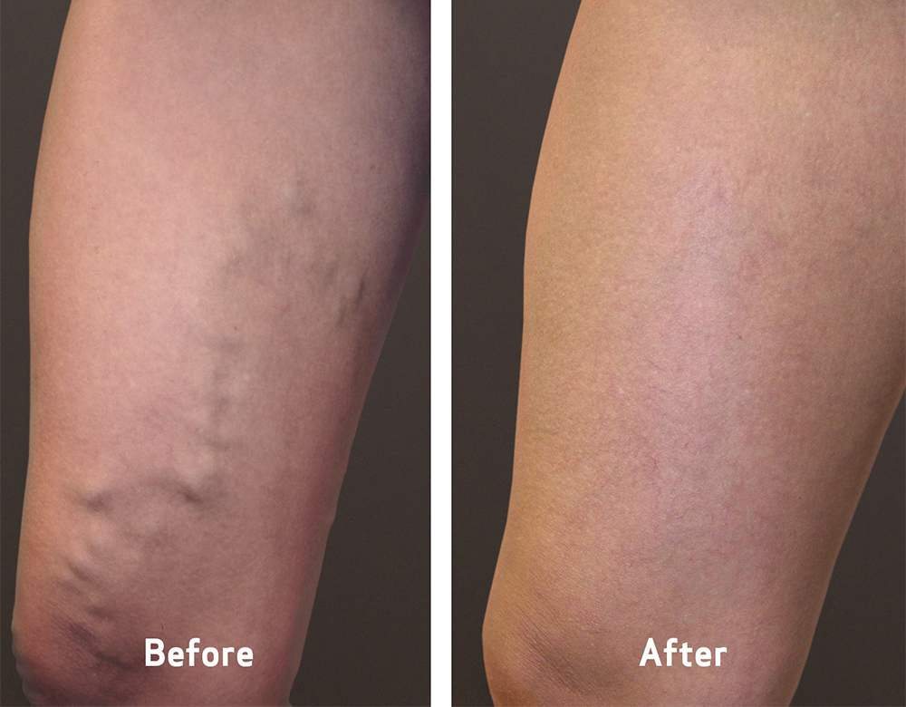 varicose veins before and after treatment