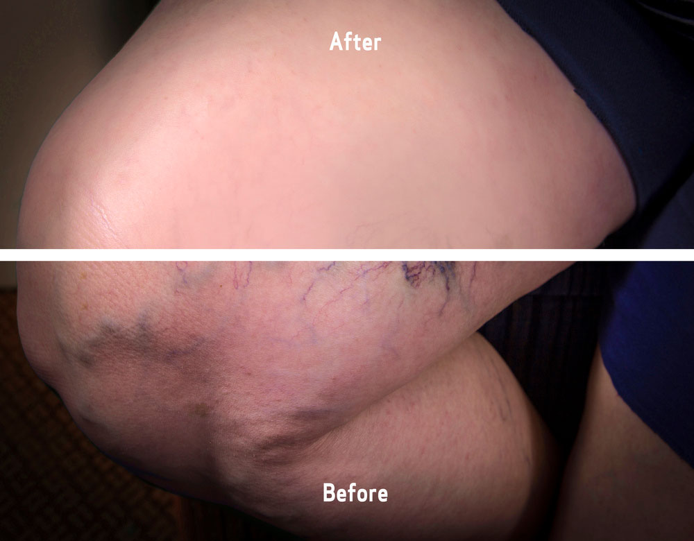 varicose veins pictures before and after