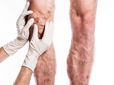 doctor examining varicose veins