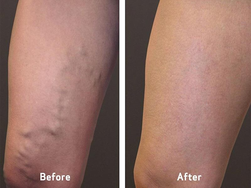 Before & After Varicose Vein Treatment