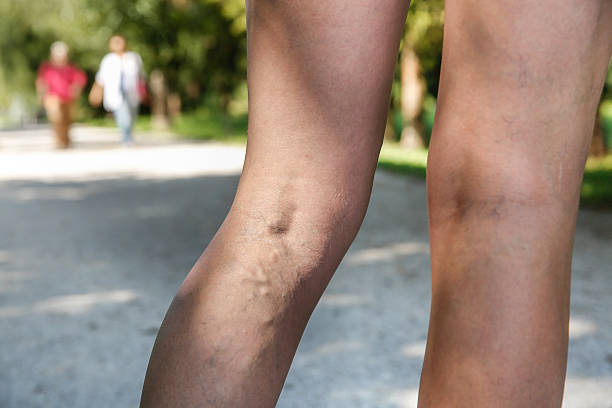 Painful varicose and spider veins on womans legs, who is active and working out, self-helping herself in overcoming the pain. Two active seniors in the background. Vascular disease, varicose veins problems, active life concept.