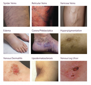 Examples of Vein Disease