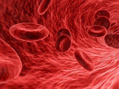 5 ways you can avoid blood clots