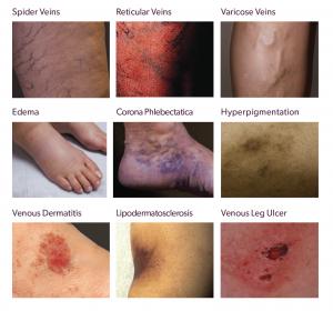 Examples of Vein Disease