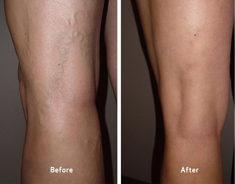 varicose veins before and after photos