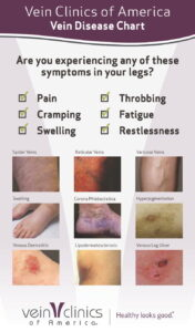 Vein Disease Chart