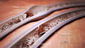animation of a healthy vein and unhealthy vein