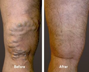 man's leg before and after varicose vein treatment