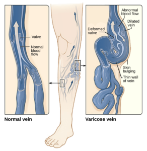 normal veins vs varicose veins