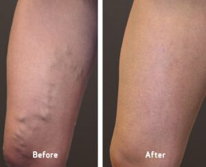 woman's leg before and after varicose vein treatment