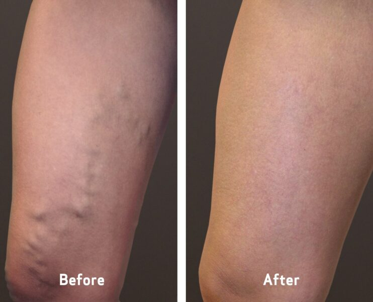 womans leg before and after varicose vein treatment