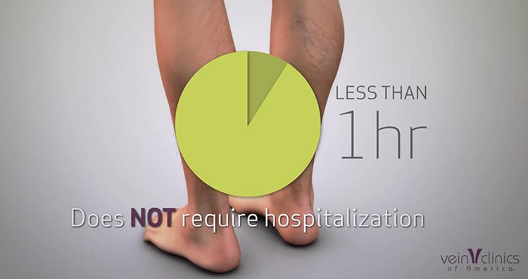vein ablation procedure facts