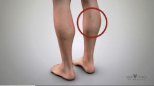 spider and varicose veins on leg