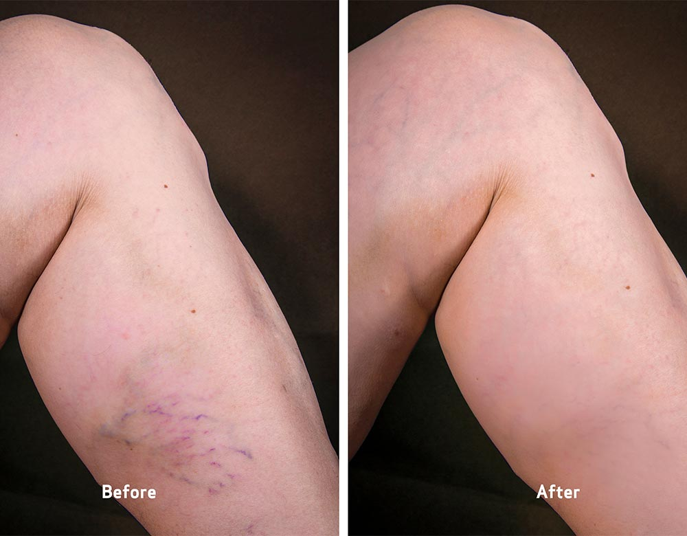 spider veins before and after pictures