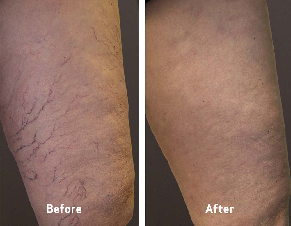 spider vein treatment before and after