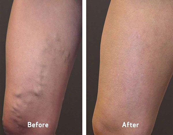 Varicose Veins Before & After Gallery