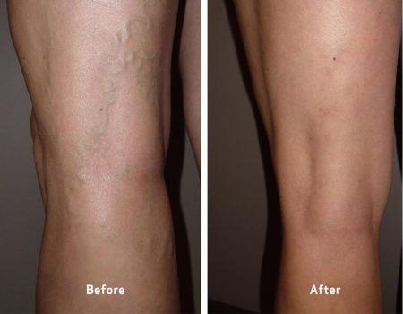 Photos of Varicose Veins Treatment