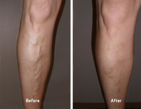 before and after varicose vein treatment